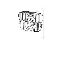 Plastica anteriore per flavia 1°serie